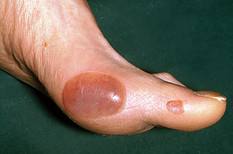 how does diabetes affect the skin - blisters