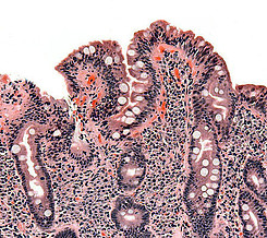 What Is The Cause Of Celiac Disease? - Villi in the small intestind are damaged
